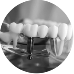 Dental Implants Bondi Junction Sydney